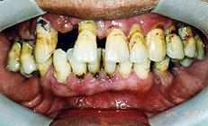 漏 歯槽 治療 膿 歯槽膿漏(歯周炎)の治し方って?気になる症状やセルフケアも紹介!